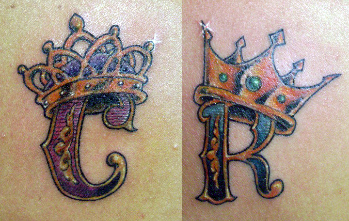 All private tattoo removal 2014