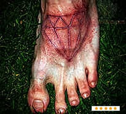 Diamond Scarification Tattoo On Foot