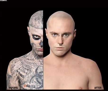 Zombie Boy Without Tattoos