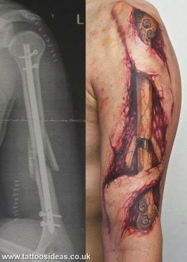 Bone Fracture Muscles Tattoo On Arm