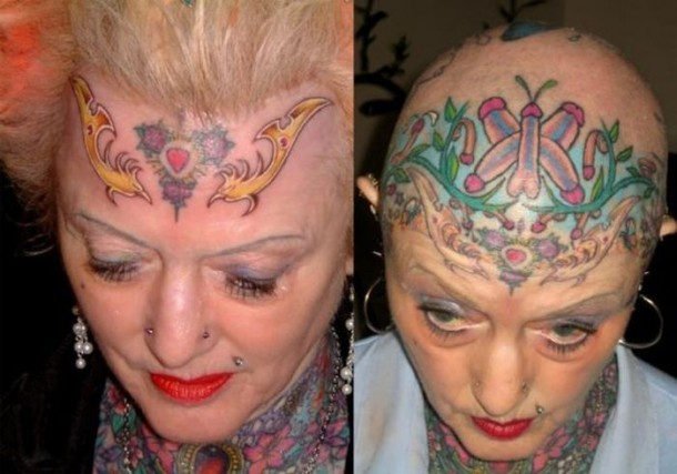 Before And After Head And Upper Head Tattoo For Lady