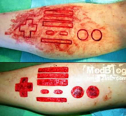 Before And After Scarification All Signs Tattoo