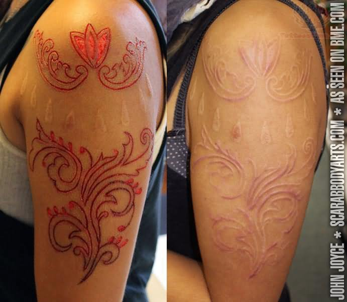 Before And After Scarification Flower Tattoo Design On Half Sleeve
