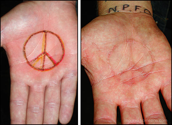 Before And After Scarification Peace Symbol Tattoo On Palm