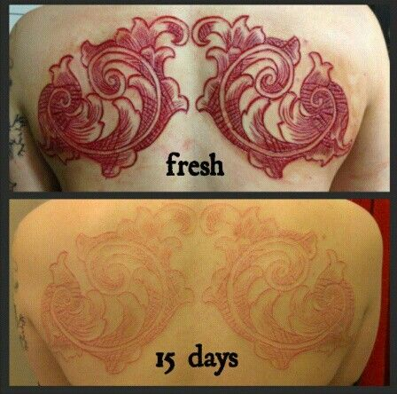 Before And After Scarification Tattoo Design Idea Make On Upper Back