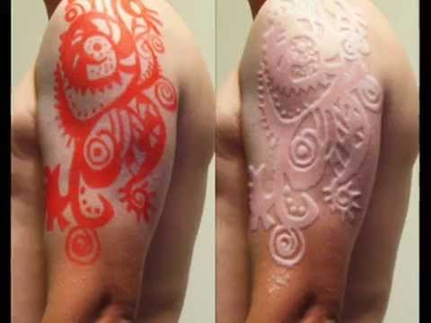 Half Sleeve Scarification Before And After Tattoo