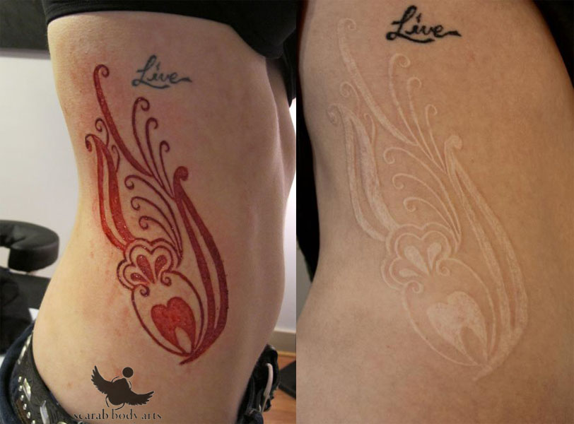 Nice Before And After Scarification Tattoo Design Idea Make On Side Rib