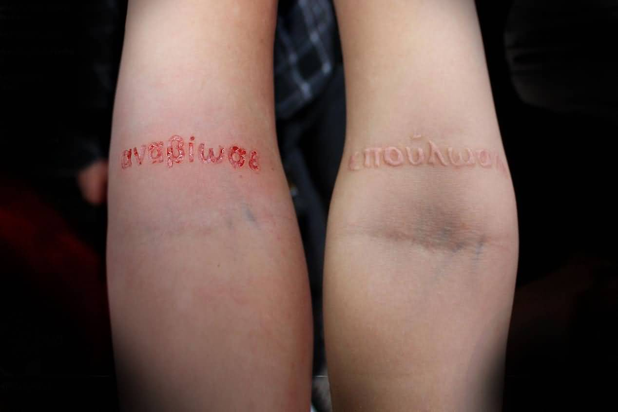 Simple And Nice Scarification Letters Tattoo